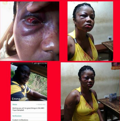 Oh my God! Imagine What A Husband Did To His Wife (TOO BAD)
