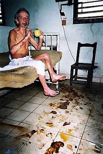 Hospital em Cuba. Fotos divulgadas  por emigrados cubanos ilustram este post.  O respeito pela dignidade humana nos levou a não publicá-las.  Porém, os perigos que corre o Brasil  agora nos levam a fazê-lo.