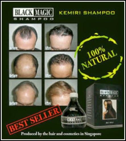 BLACK MAGIC KEMIRI SHAMPOO Penumbuh dan Pemanjang Rambut