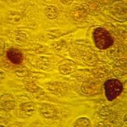 Informatii medicale despre grupul Chlamydia