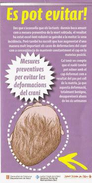Plagiocefàlia