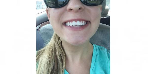 Cara Memutihkan Gigi Alami