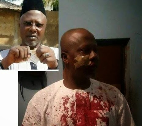 PDP Thugs Beat Up The SSA Who Tore His Party Card