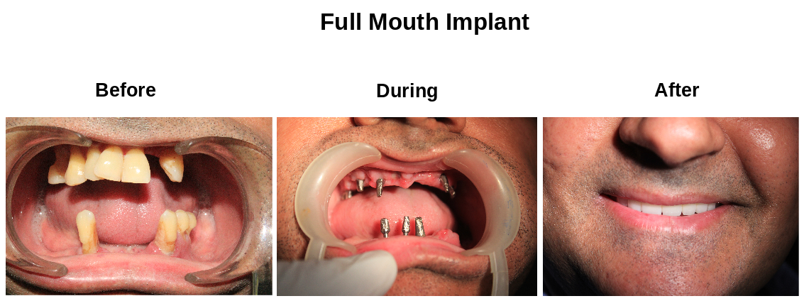 full mouth rehabilitation in chennai