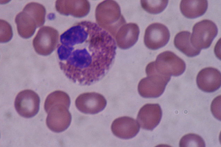 Image of an eosinophil