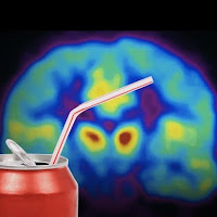 Sweetened soda and brain scan