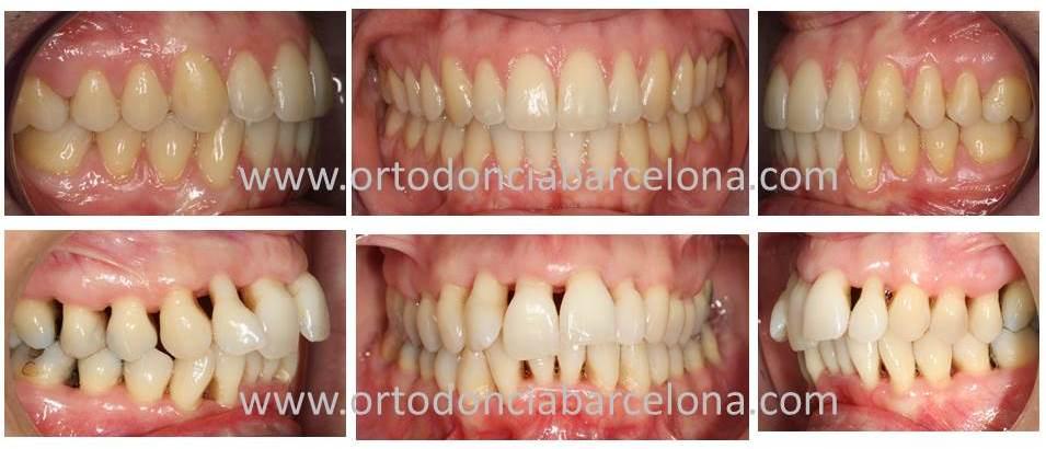 Ortodoncia tres torres ortodoncia en pacientes con for W de porter ortodoncia