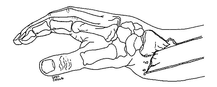 Protocolo de reabilitação para o tratamento conservador da fratura de Colles