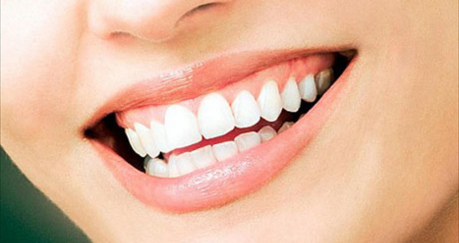 Konsumsi Buah Ini Agar Gigi Putih Alami Nan Sehat