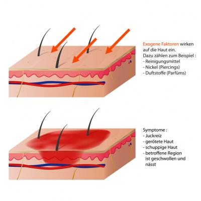 Die Hauterkrankungen die Schuppenflechte tscheschujtschatyj entziehe