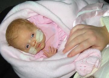 Angelica premature baby born at 26 weeks jpg