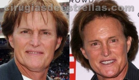 Bruce Jenner antes y despues