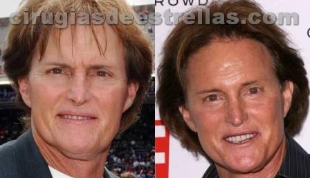 Cirugía plástica de Bruce Jenner