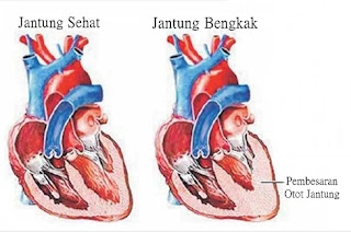 Obat Jantung Bengkak Aman Dan Ampuh