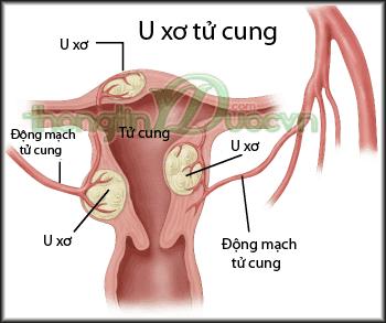 Hiểu rõ bệnh u xơ tử cung để điều trị