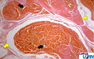 trombose darm