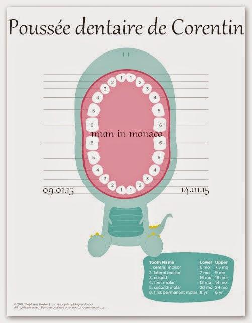 Bien-aimé Mum in Monaco: Poussée dentaire de mon petit poussin AY29