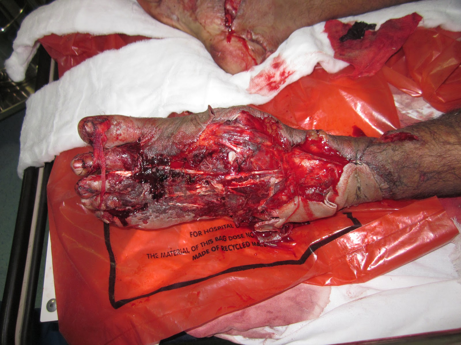 MAJOR CRUSH INJURY FOOT WITH HEEL PAD AVULSION/ INJURY, LISFRANC -3.bp.blogspot.com