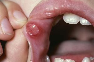 soigner un aphte langue levre