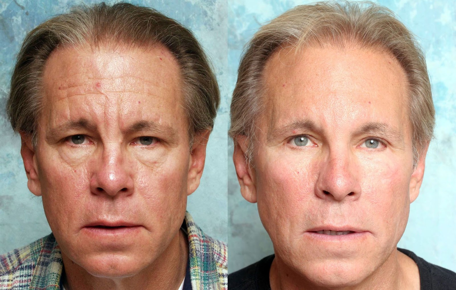 Face Yoga Nya Metoden F 246 R Sl 228 Tare Ansikte Utan Kirurgi