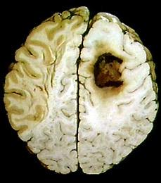 apa itu kanker otak