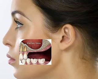 Apa Penyebab Sakit Gigi ,  Berlubang dan , Kambuh