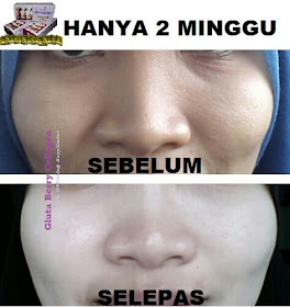 GLUTA BERRY COLLAGEN HOT!