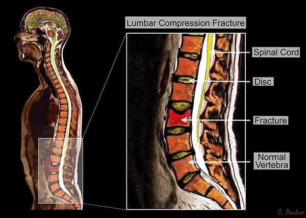 Color Lumbar Spine MRI Osteoporosis Compression Fracture
