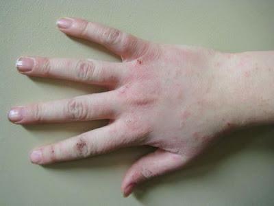 eczema, dermatitis