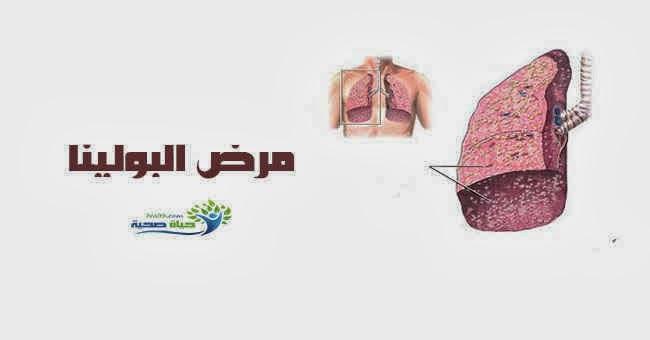 مرض البولينا