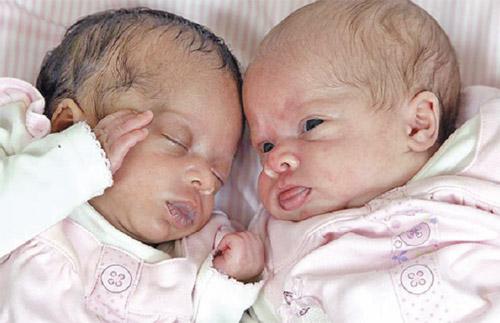 PERBEZAAN ketara dapat dilihat pada pasangan kembar Candice (kiri) dan Aleisha yang dilahirkan kira-kira empat minggu lalu.