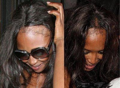 mulheres famosas faz tratamento de queda de cabelo