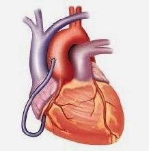 7 Cara Untuk Kesehatan Jantung