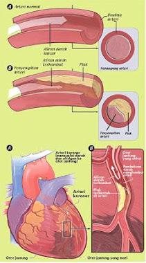 kolestrol
