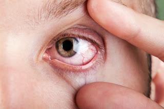 Prevents having dry eyes