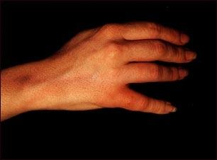 Linfangitis y linfadenitis