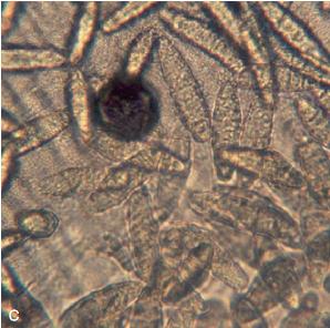 Hình ảnh vi thể kiểm tra của lông và vảy tróc ra từ một con chó (chuẩn bị mẫu KOH) có chứa bào tử nấm.