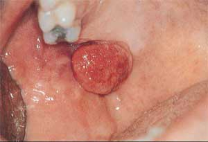 Picture5 Peripheral Giant Cell Granuloma | ppt