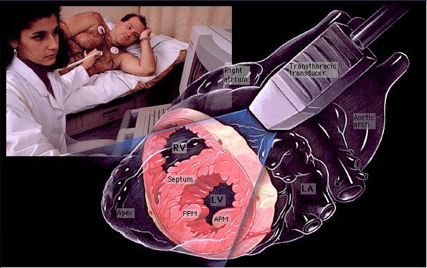 Exame ecocardiograma