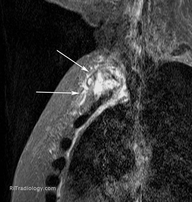 RiT radiology: Sternal Osteomyelitis
