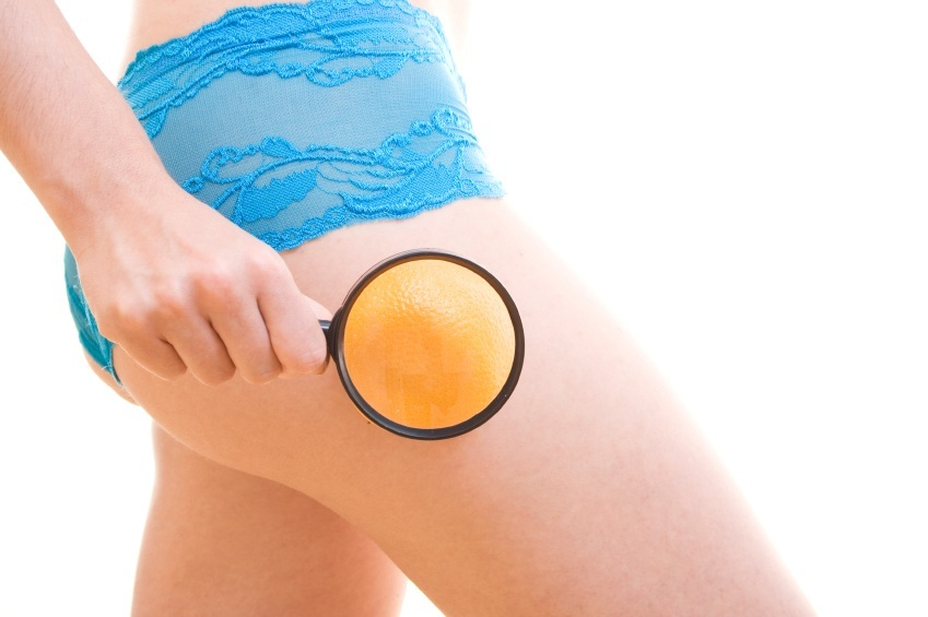 Five Tips for Cellulite Reduction