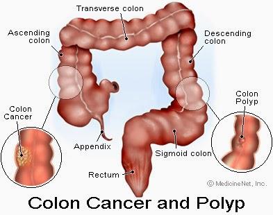 Obat Tradisional Kanker Kolorektal