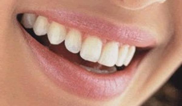 Que significa soñar com dientes