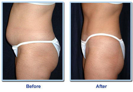 cryolipolysis body contouring