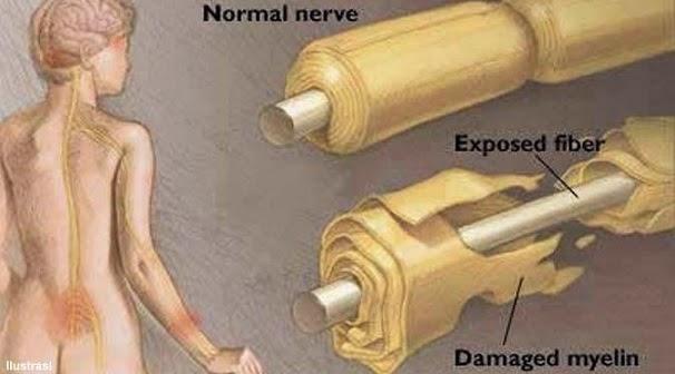 Pengertian Penyakit Guillain Barre Syndrome (GBS), Penyebab, Gejala dan Pengobatan