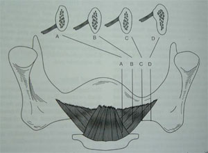 Picture12 Anatomy of mandibular denture bearing area .ppt