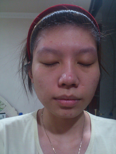 epure, membranous jelly masque,before after