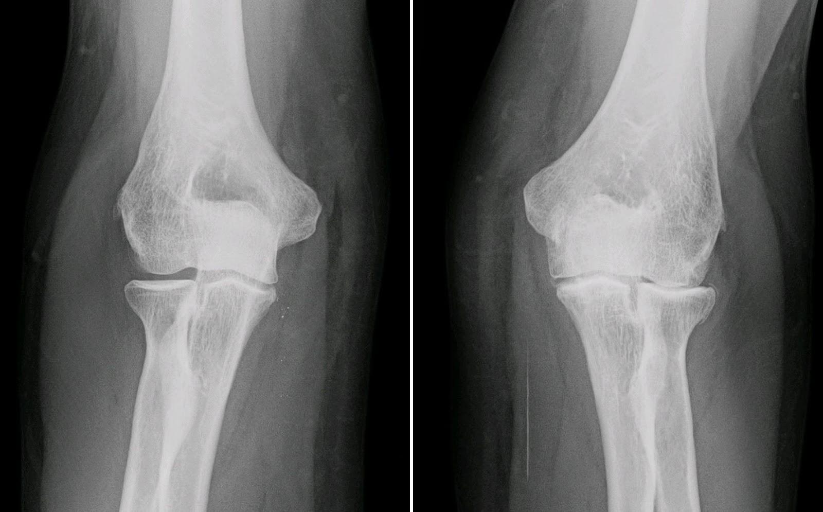 radiografia artrosis
