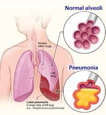 Pengobatan Tradisional Penyakit Pneumonia