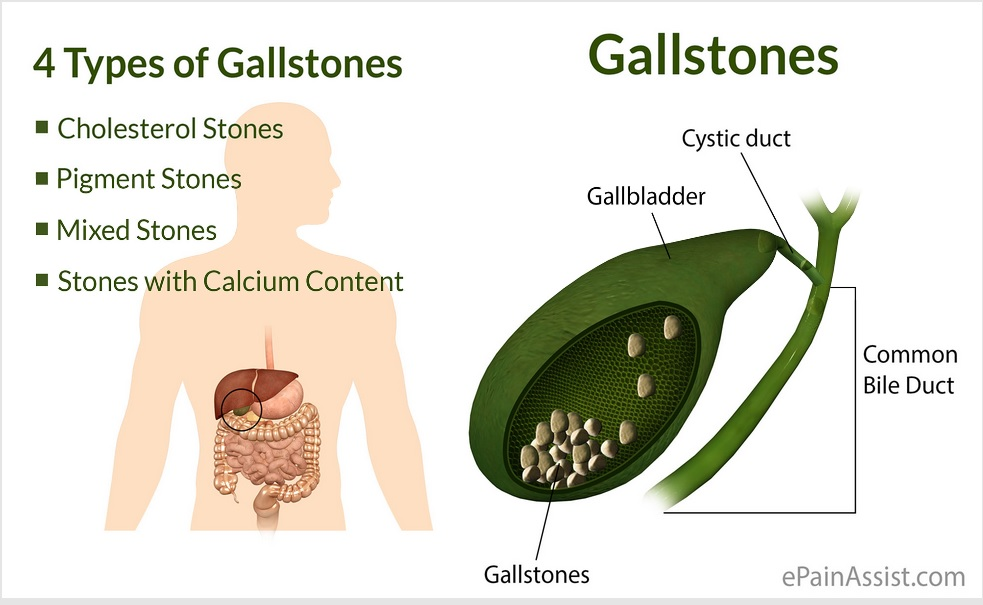 Gallbladder Stones Natural Treatment In Hindi